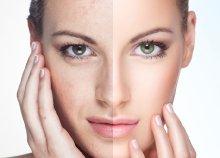 Bőrrejuvenációs karbon-peeling arckezelés