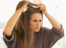 Sokkterápiás kezelés erős hajhullás ellen