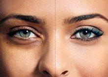 Beautiful Eyes Care System kezelés