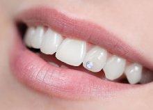 Fájdalommentes fogkő-eltávolítás ultrahanggal