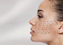 Thermage bőrfiatalító kezelés 3 helyszínen