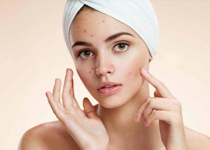 Tisztító arckezelés kamaszoknak a Beauty Deluxe Cosmetics Rózsadomb szalonban, 40-80 percben, fiúknak és lányoknak egyaránt