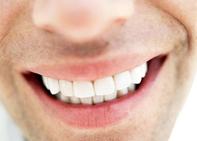 Csillogó, egészséges és fehér fogak! Fogkő eltávolítás, fogfehérítő polírozással, ingyenes szűrővizsgálattal és dental higiéniai tanácsadással 24000Ft helyett 7190Ft