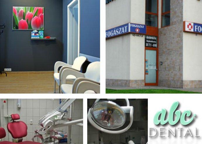 Az egészséghez és a gondos fogápoláshoz hozzátartozik egy fehéren villanó mosoly! Fogászati komplett csomag az ABC Dental-ban