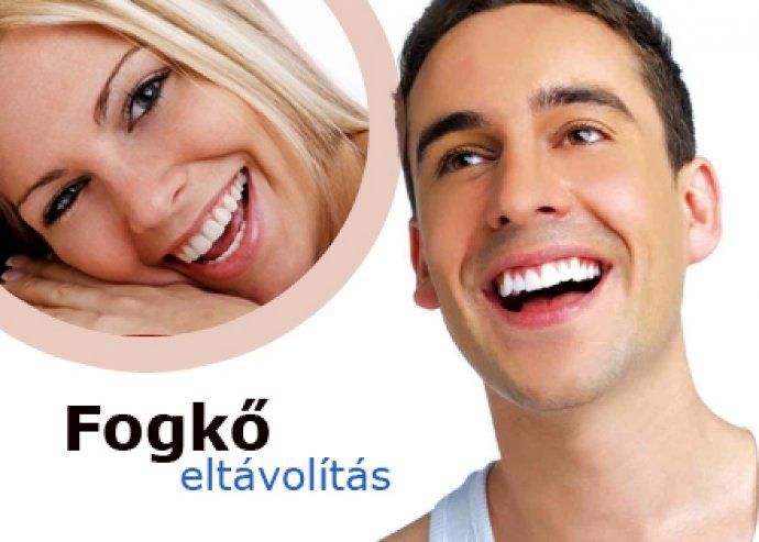 Állapotfelmérés, parodontális szűrés, fogkő eltávolítás, OP felvétel (panoráma röntgen), fehérítő hatású polírozás