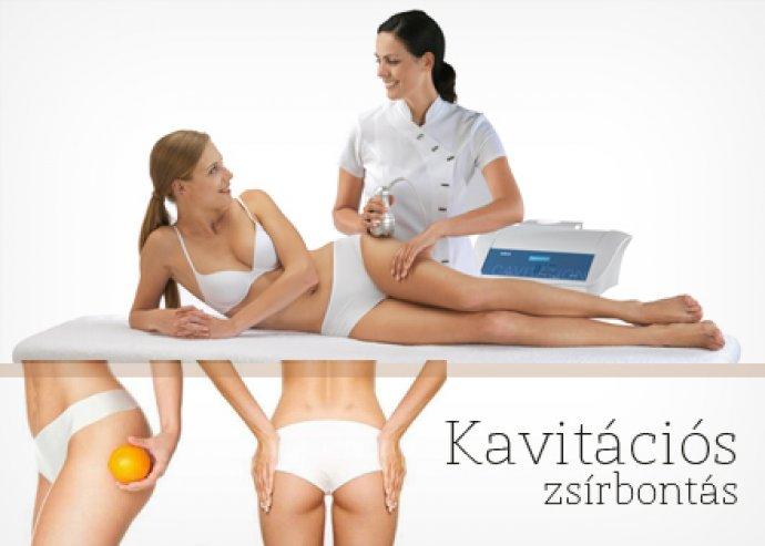Maxi kavitációs zsírbontás + vibrotréner + nyirokhullámmasszázs