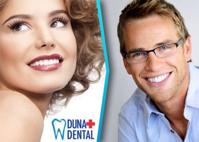 Válogasd össze fogászati kezeléseid a Duna Dentál-nál
