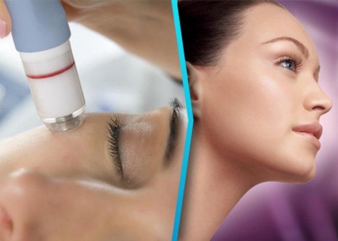 Gyémántfejes mikrodermabráziós kezelés teljes arcon