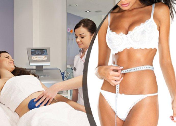5 alkalmas kavitációs zsírbontás a kiváló alakért