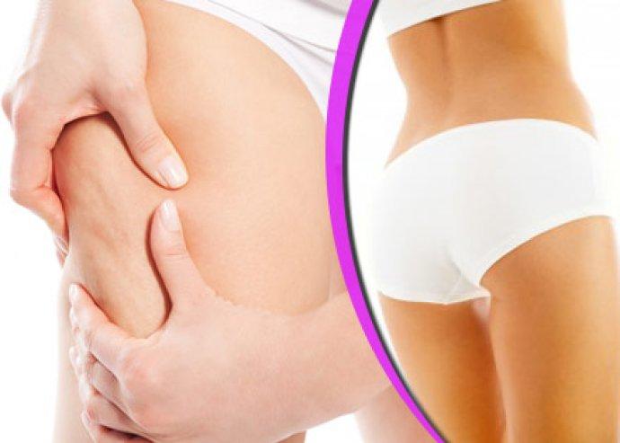 Cellulit kezelés testtekercseléssel, vibrációs tréninggel!