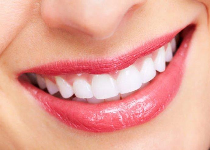Fogkőeltávolítás fehérítő hatású polírozással, fog-és szájápolási tanácsadással az Imperial Dental Fogászati Klinikán