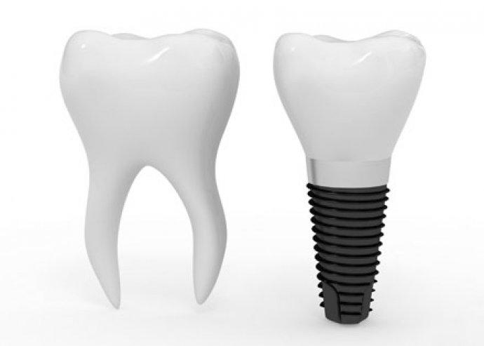 Azonnal terhelhető fogimplantátum + kezelési csomag