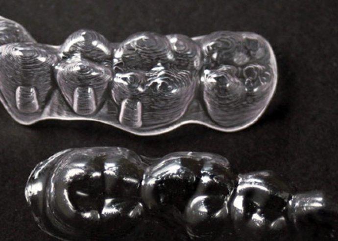 Diszkrét fogszabályozás, kényelmes és láthatatlan műanyag sínekkel, a White Point szakrendelőben