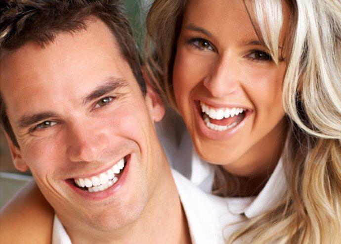 Elektromos fogkefe fej Oral B és Braun fogkefékhez, 4 db-os kiszerelésben