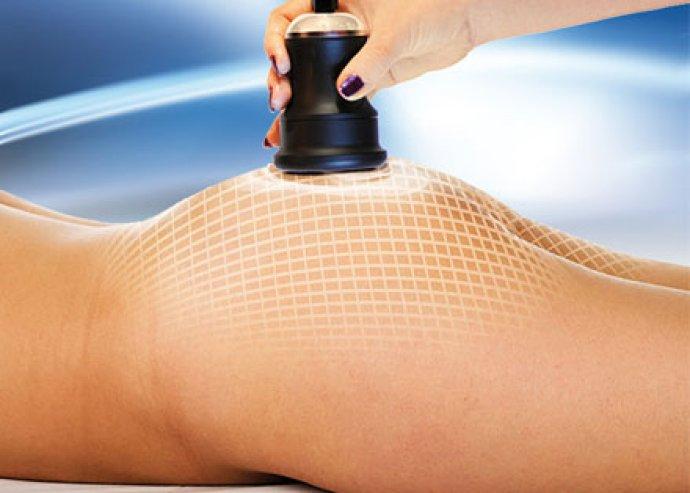 Alakformálás, feszesítés, méregtelenítés télen is! 5 alkalmas ultrahangos kavitációs zsírbontás