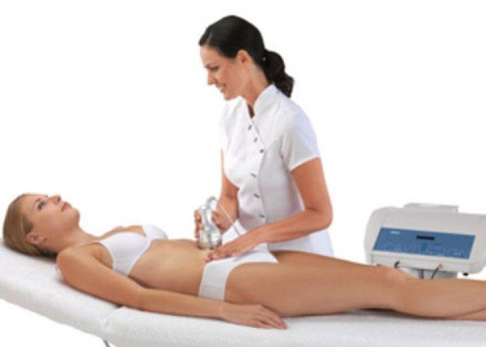 6 alkalmas kavitációs zsírbontás, koplalás nélkül