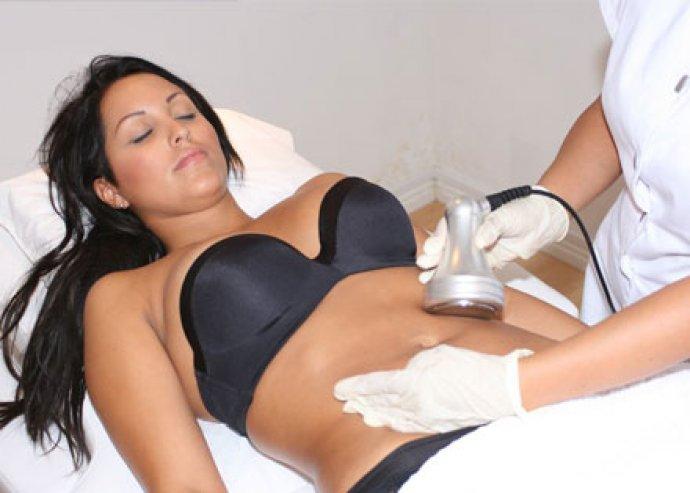 Tűnjön el a zsírpárna a csípődről 10 kezeléssel, 5 alkalommal