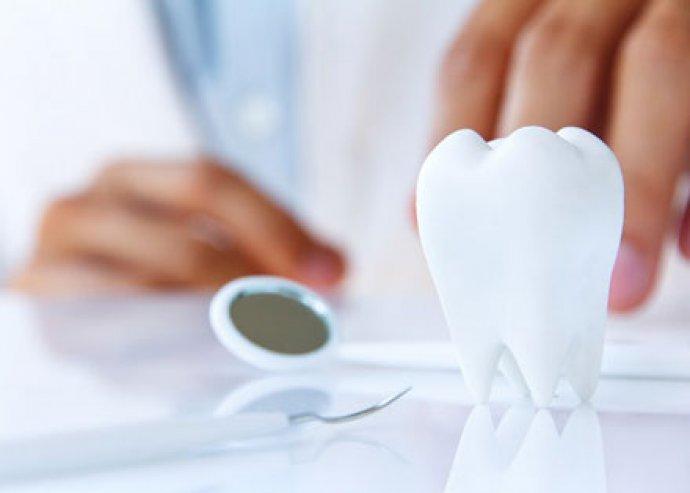 Szeresd az édes élvezeteket, de ne feledkezz el betömetni lyukas fogaidat!