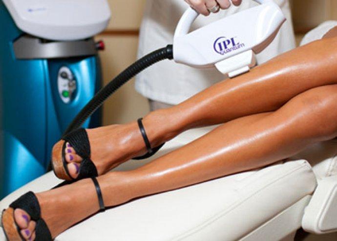 3 alkalom, teljesen fájdalommentes, hatékony IPL seprűvéna kezelés egy tenyérnyi területen