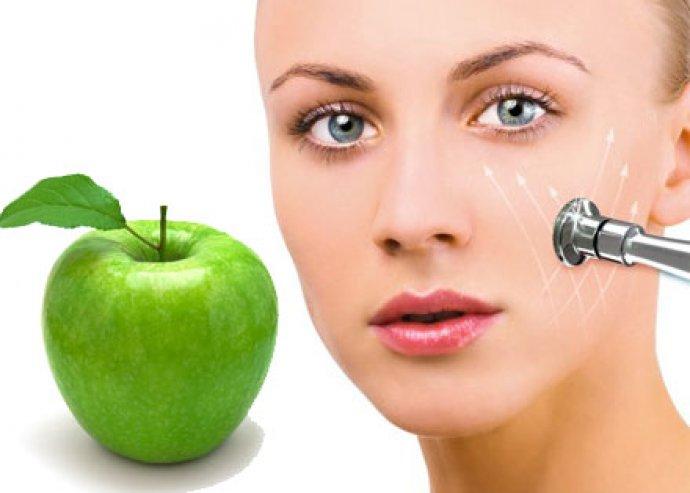 Gyémántfejes mikrodermabráziós arckezelés alma őssejt terápiával, 3-féle speciális pakolással