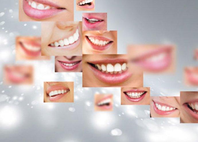 Ultrahangos fogkő eltávolítás, prophyflex homokgyöngy technológiával, fogászati szűrés az egészséges fogakért