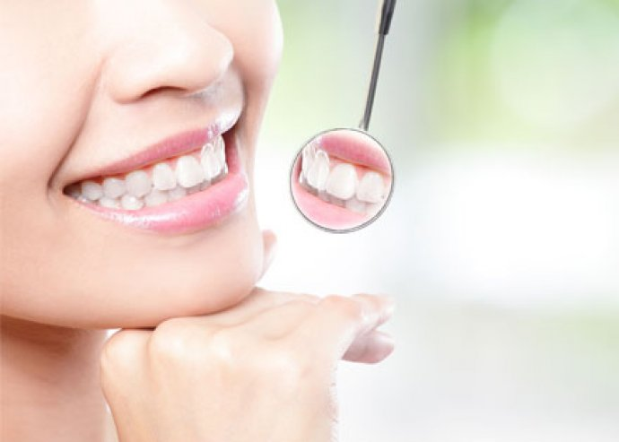 Legyenek fogaid meseszépek és egészségesek! Fogkő eltávolítás, polírozással, állapotfelméréssel a belvárosban