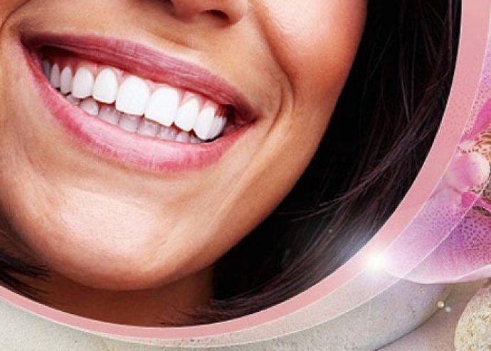 A mesés mosoly már csak egy karnyújtásnyira van! LED lámpás fogfehérítés, fogkő-eltávolítással és polírozással
