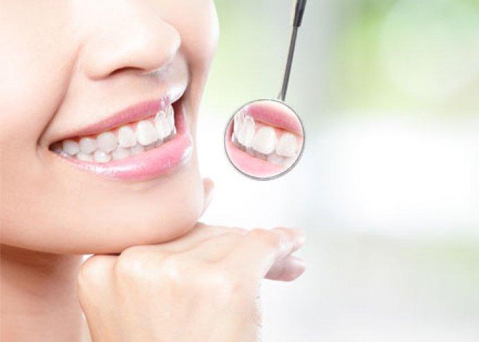 Varázslatos fogsor - ultrahangos fogkő-eltávolítás, homokfúvás, polírozás, rákszűrés