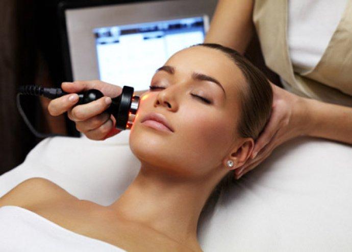 Frissítsd fel arcbőröd ezzel az 5 alkalmas újgenerációs arcfiatalító kezeléssel + ajándék nyirokmasszázzsal