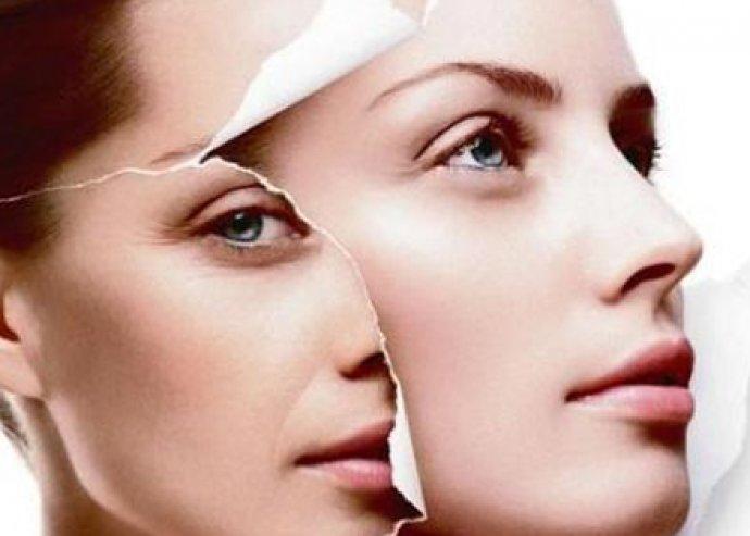 3 részes, botox hatású ránctalanító kezelés – fiatalos bőr már egy alkalom után!