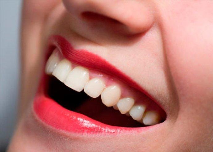 Gondoskodj az egészségedről! Bölcsességfog húzás + fogászati szűrővizsgálat + kezelési terv + konzultáció