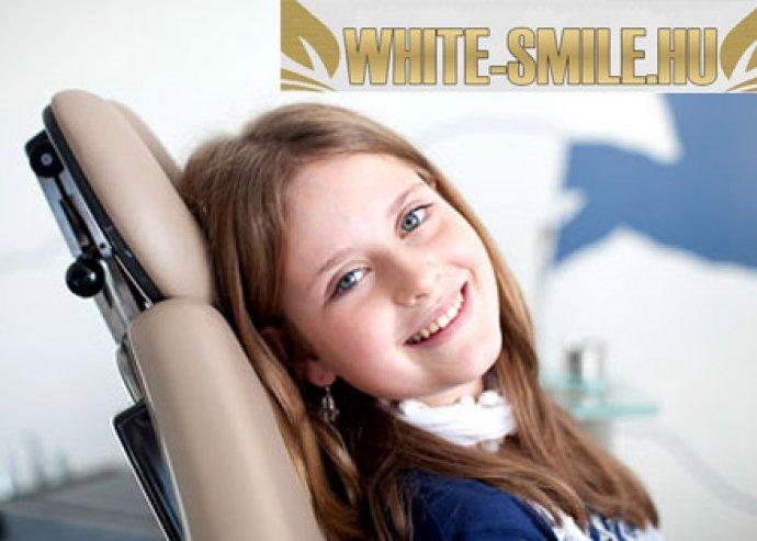 3D kezelési terv, fogkőlevétellel és röntgennel a csodaszép fogsorért, láthatatlanul!