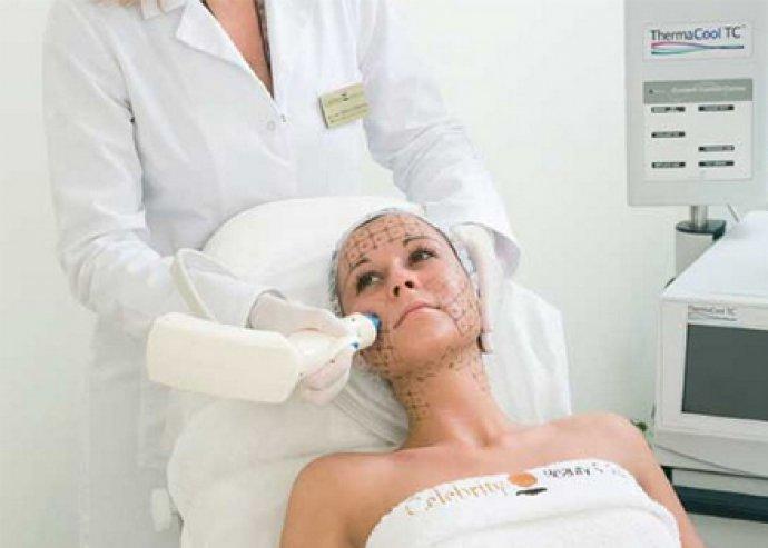 Thermage szem és szájkörnyék kezelése (15 perc), arc, nyak, dekoltázs kezelése, minden bőrtípus esetén