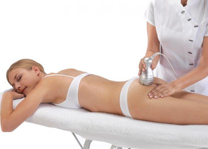 Célozd meg a zsírsejteket! 5×20 perces kavitációs zsírbontó kezelés, a formás és feszes alakért