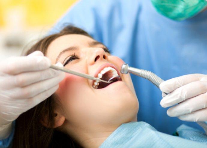 Fogkőeltávolítás fehérítő hatású polírozással a White-Smile Fogászat jóvoltából!