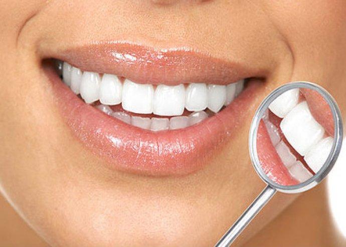 Ultrahangos fogkő eltávolítás és fogfehérítés