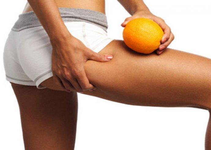 5 alkalmas, vákumos cellulit kezelés