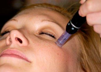 Meso-Dermapen kezelés a Luxury Body Care-től
