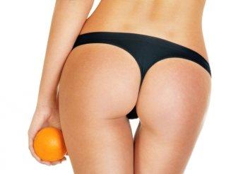 Intenzív narancsbőr elleni kezelés