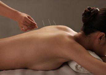 Akupunktúrás testkezelés konzultációval