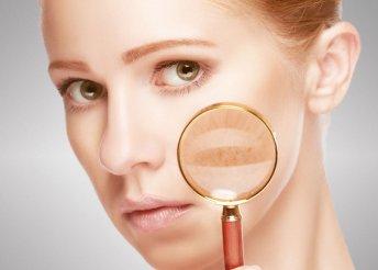 Bőrhibák elleni kúra soft lézerrel
