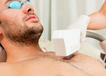 Gyors, kíméletes SHR szőrtelenítés férfiaknak