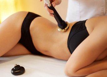 Karcsúsodj kavitációs zsírbontással és flabélos-szal