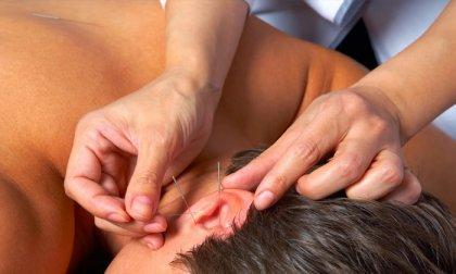 Akupunktúrás fogyasztó kezeléssorozat